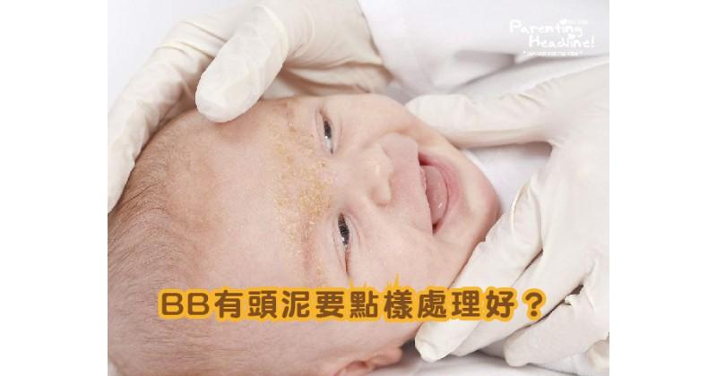 【拆解原因】點解BB有頭泥?