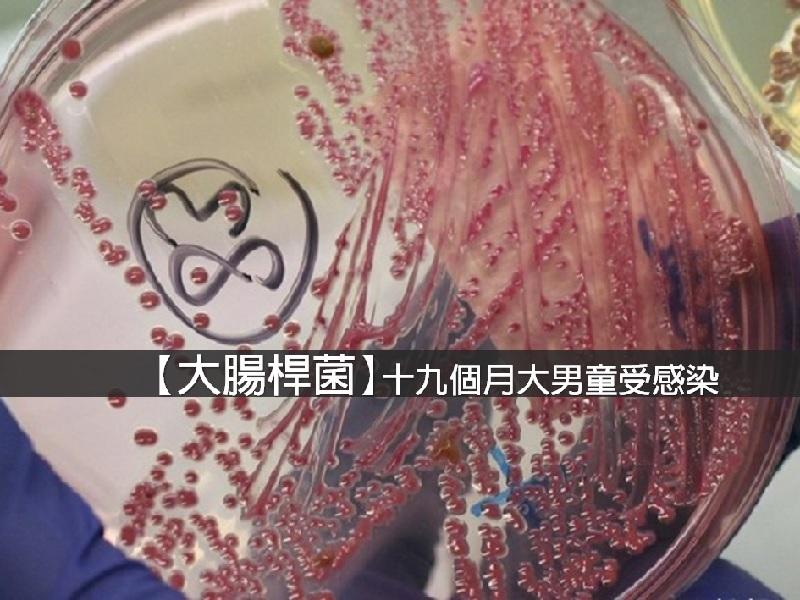 【即時消息】19 個月男童感染大腸桿菌