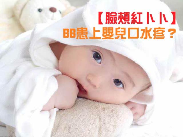 【臉頰紅卜卜】BB患上嬰兒口水疹?